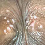 Parafrenular Glands-03