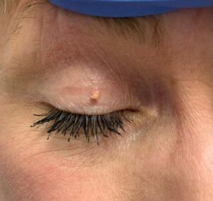 SkinTag-Eye-2.1